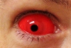 Красные склеры